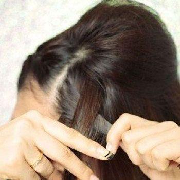 前额侧发分三股